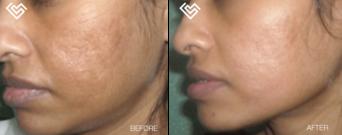 acne-scar-treatment